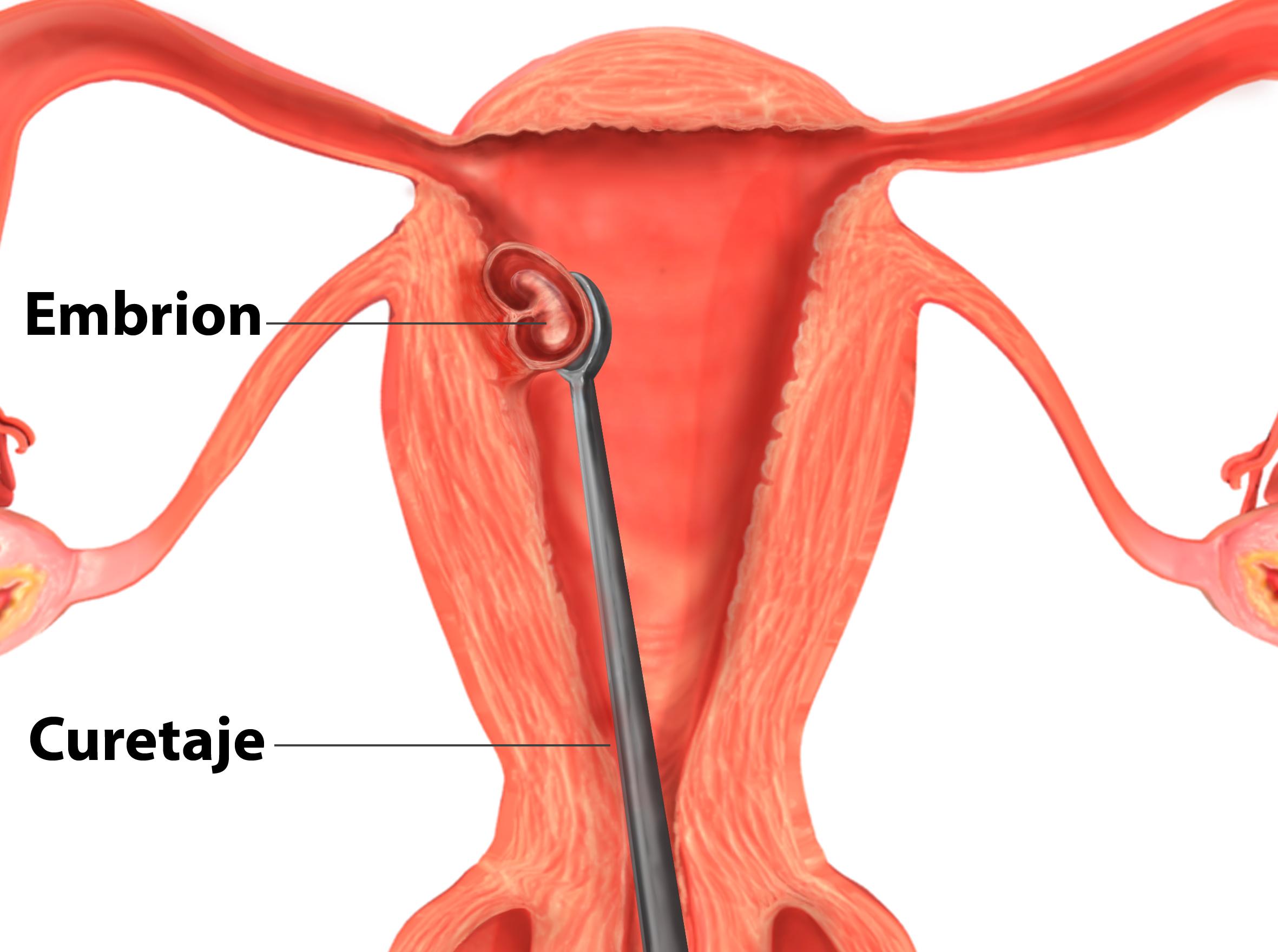 Cuáles son las técnicas quirúgicas del aborto?
