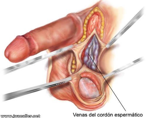 Alteraciones anatómicas alteran la fertilidad